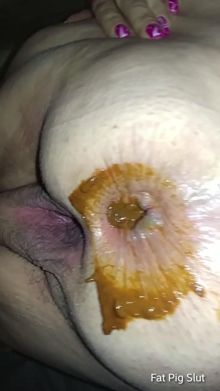 Bbw shitty anal gape - ScatFap.com - scat porn search - FREE ...